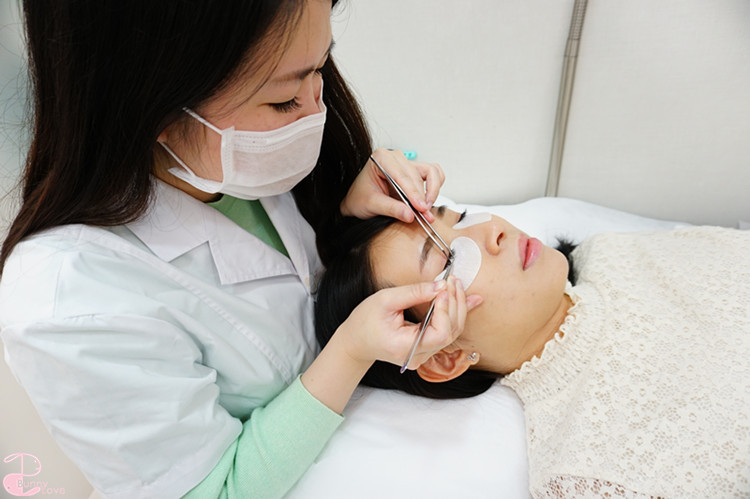 Picogenius and traditional laser treatments